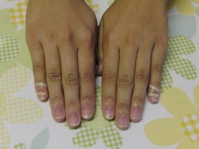 両手の小指